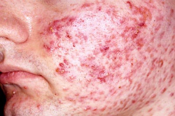 Skin Problems - Dr. Kamil Al Rustom Skin & Laser Centre