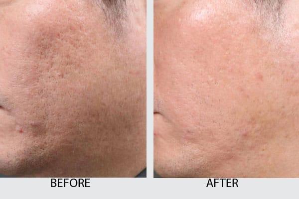 intracel-pic2 - Dr. Kamil Al Rustom Skin & Laser Centre