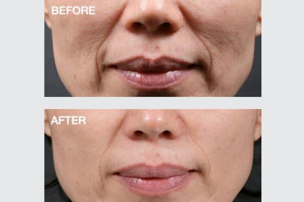 Intracel An Innovative Proven Revolutionary Skin