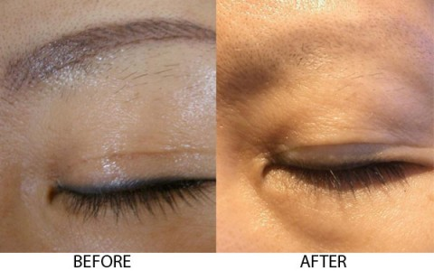 Tattoo removal laser dr al rustom skin laser centre for Post laser tattoo removal
