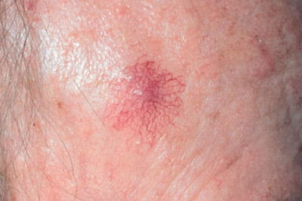 Hemangioma in Adults Pictures  62 Photos amp Images