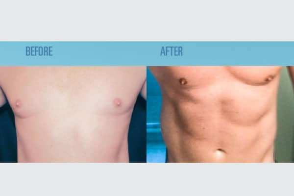 Coolsculpting Is The Best Solution To Reduce Fat Amount By