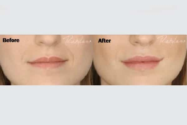 Fillers For Face And Body For A Better Look And Sensation