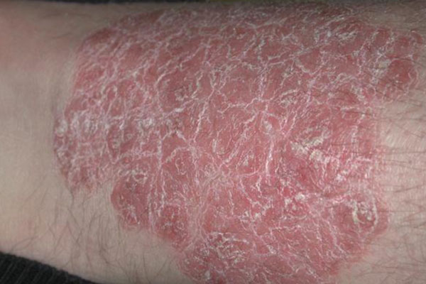 The Global Psoriasis Therapeutics market has also been witnessing an increased focus on using combination therapies for treating psoriasis 3